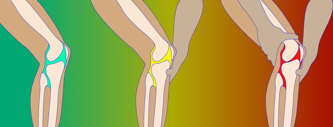Progression of arthritis and knee pain in someone's leg. The background color goes from green to yellow, to red.