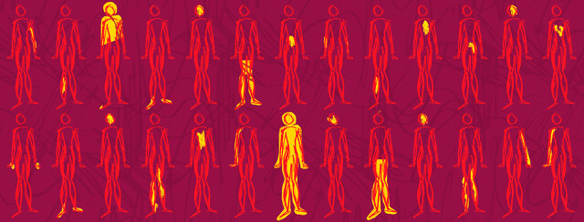 Multiple repeated images of a body outline showing the different places people deal with MS pain.