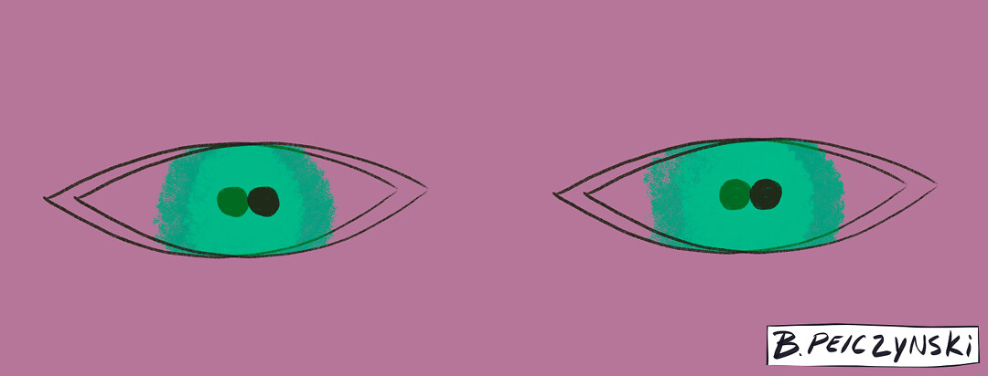 Living with MS and double vision
